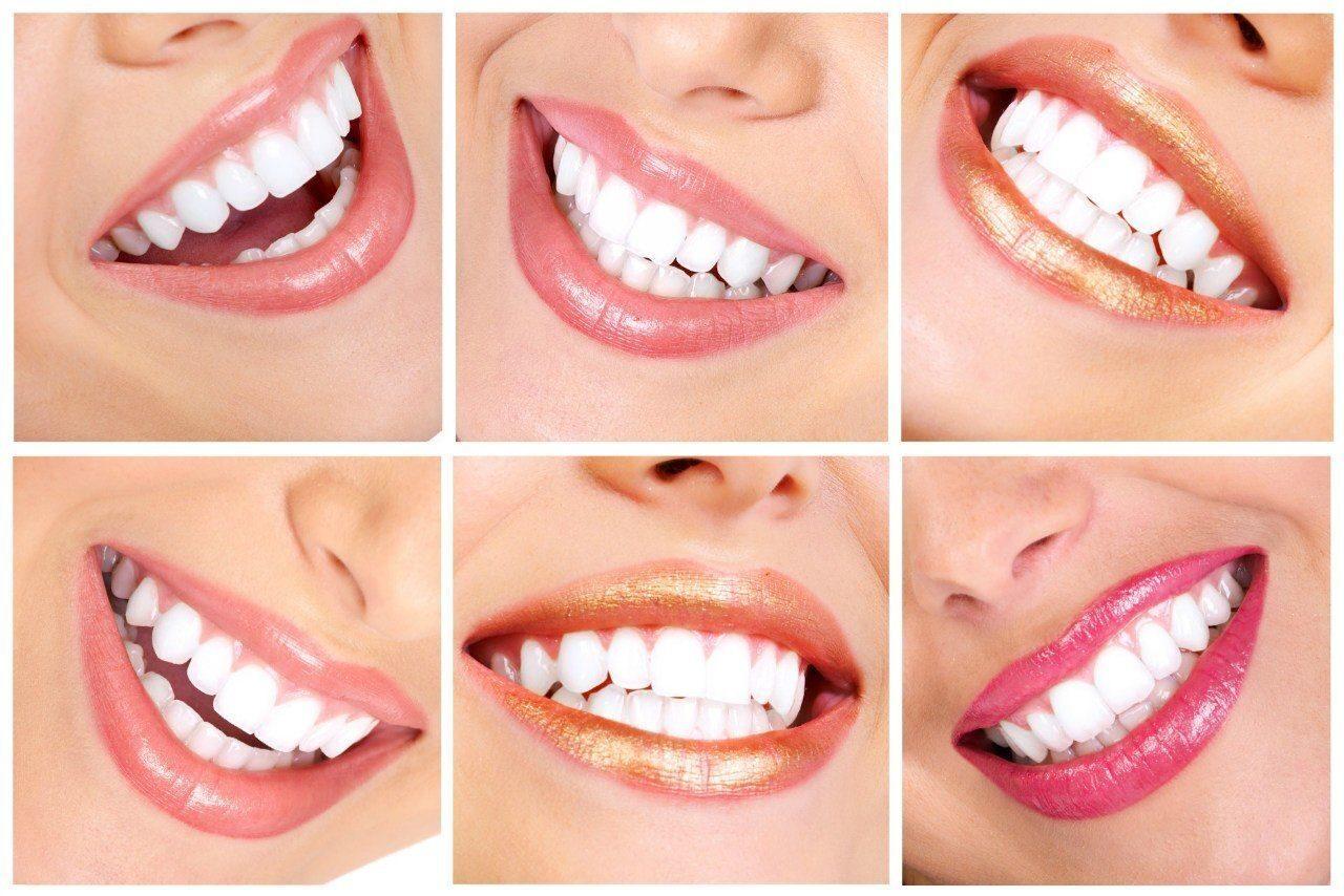 Для отбеливание зубов в домашних условиях самый лучший способ отзывы